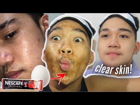 TRENDING! COFFEE + EGG WHITE MASK (CLEAR SKIN IS REAL! / 7 DAYS REVIEW) | Marcus Chleone